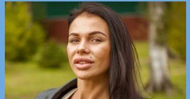 Саша Шева была очень милой до увеличения губ
